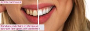 blanchiment dentaire en Martinique