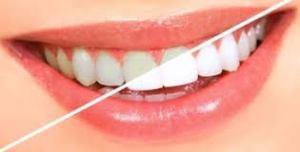 blanchiment soins dentaires et esthétiques cabinet paraschiv perpignan