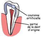 couronne soins dentaires alignement blanchiment carie prothèses inlay onlay pivot cabinet dentaire paraschiv perpignan