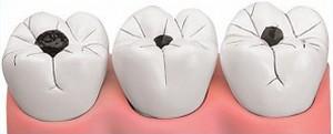 soins dentaires et esthétiques cabinet paraschiv perpignan