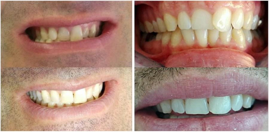 soins dentaires alignement blanchiment cabinet dentaire paraschiv perpignan