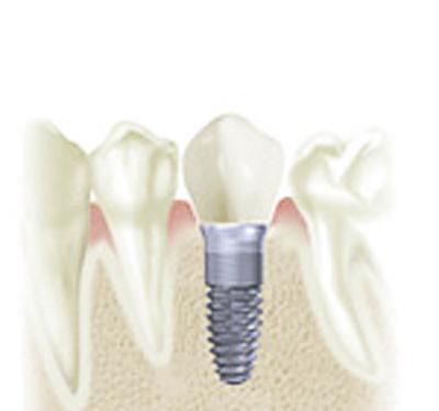 Implant-400-x-475.jpg?fit=400%2C374&ssl=1
