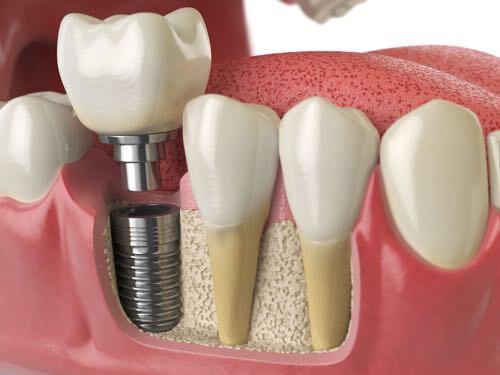 Dental-Implant-500-x-375-2.jpg?fit=500%2C375&ssl=1
