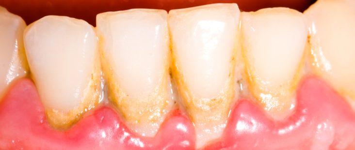 Dental-Plaque-732-x-310.jpg?fit=732%2C310&ssl=1