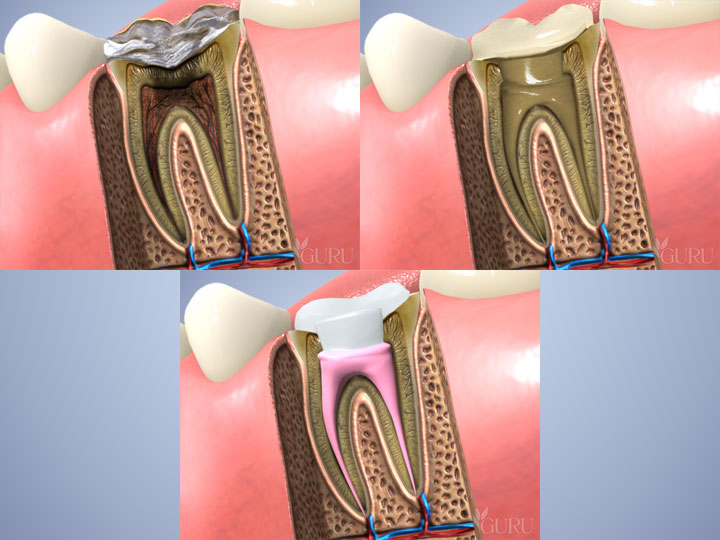 RootCanal.jpg?fit=720%2C540&ssl=1