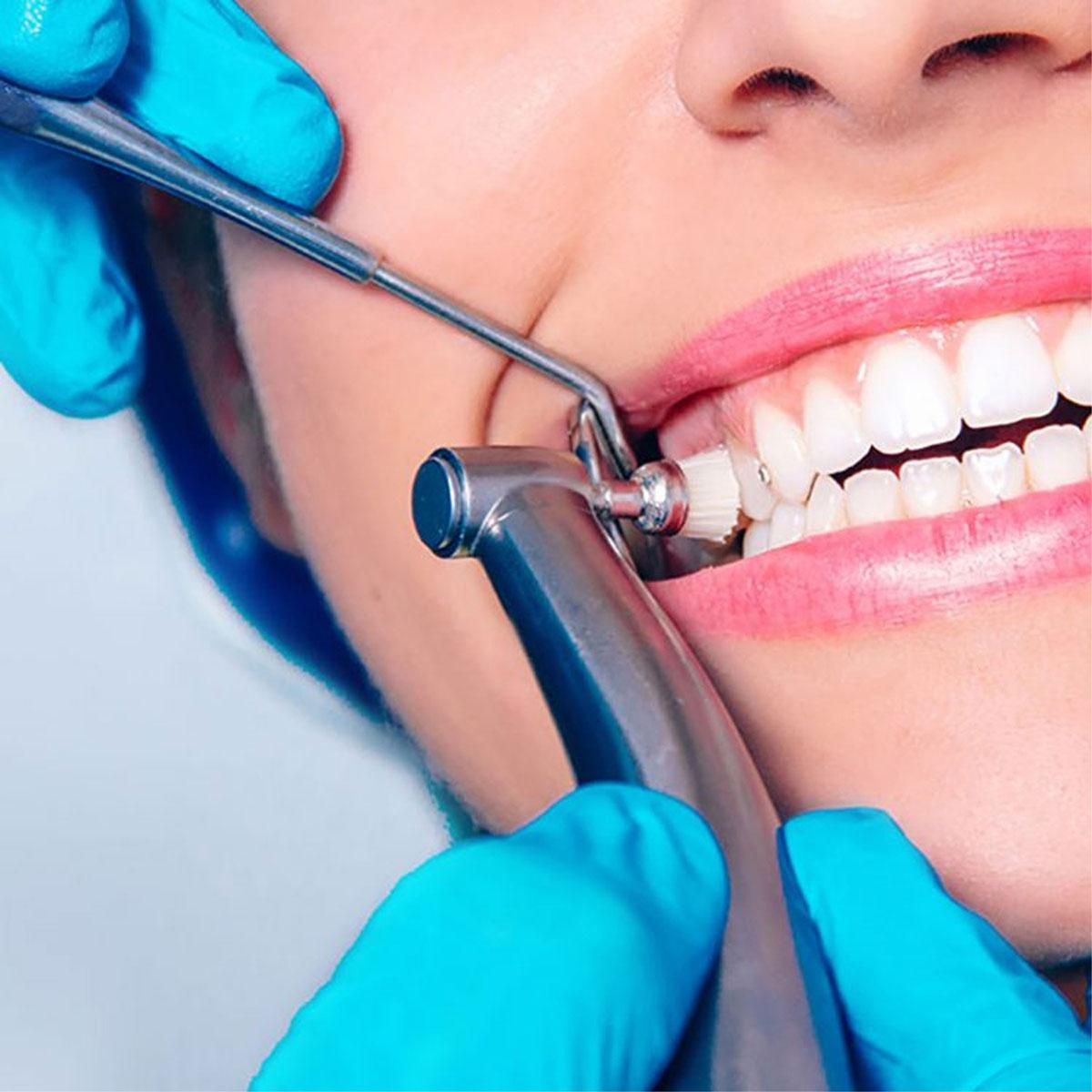 Dental-Cleaning-1200xx-1.jpg?fit=1200%2C1200&ssl=1