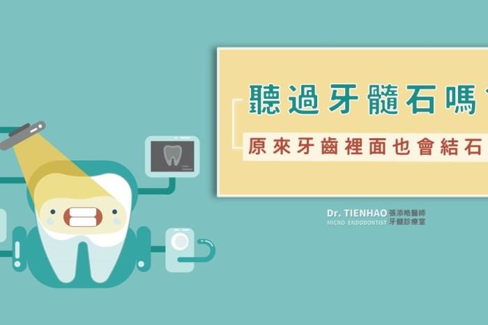 原來牙齒裡面也會結石呀?你聽過牙髓石嗎?