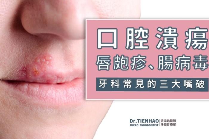 口腔潰瘍、唇皰疹、腸病毒。出現牙科常見的三大嘴破時,可以根管治療或根管手術嗎?