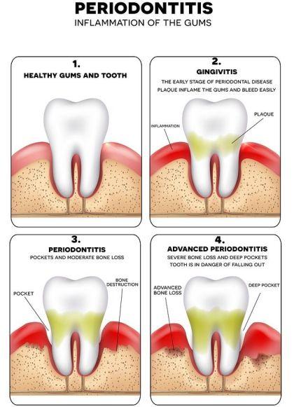 Penyakit Gusi- Global Estetik Dental Care