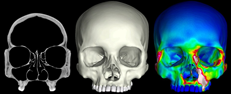 "X-ray CT ""slices"" were used to construct 3D finite element models of human crania. These models were then subjected to a series of mechanical analyses that simulate feeding. The image to the far right depicts a finite element model during a bite on its left first premolar. ""Warm"" colors indicate regions of high strain, while ""cool"" colors indicate regions of low strain."