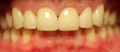 Final PJC Zirconia in Patients Mouth