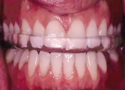 Teeth with nightguard