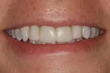 Patient wearing temporary crowns