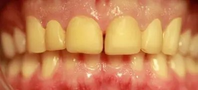 Teeth with temporary crowns