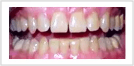 Veneers Before Treatment