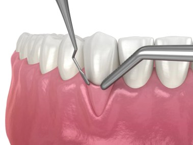 Periodental step 4