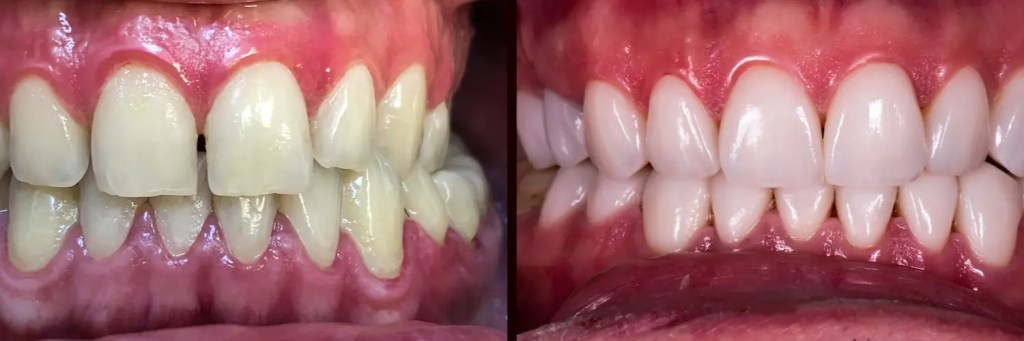 With Veneers & Without Veneers