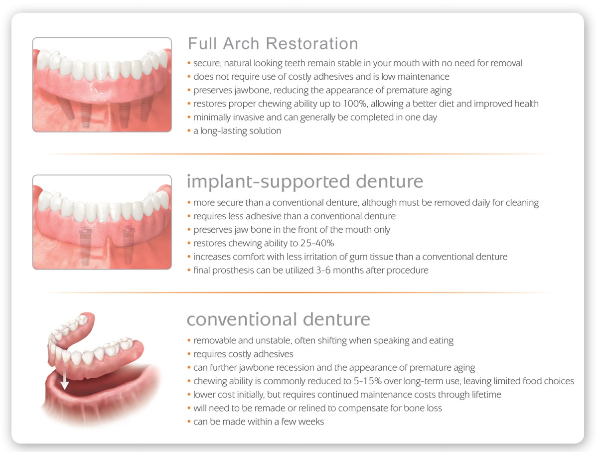 All-On-4® - Sedation and Implant Dentistry of Tehachapi with