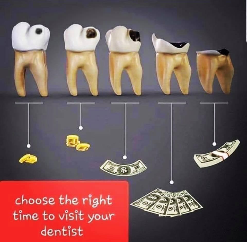 Cost-of-Teeth.jpg?fit=960%2C940&ssl=1