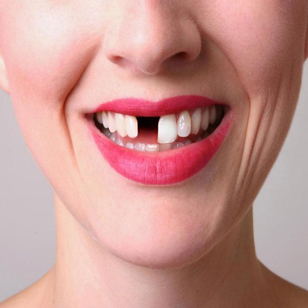 Female-Missing-Tooth-1000xx.jpg?fit=1000%2C1000&ssl=1
