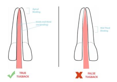 False vs true tug-back