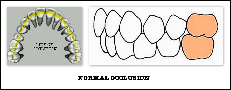 Angle S Classification Of Malocclusion