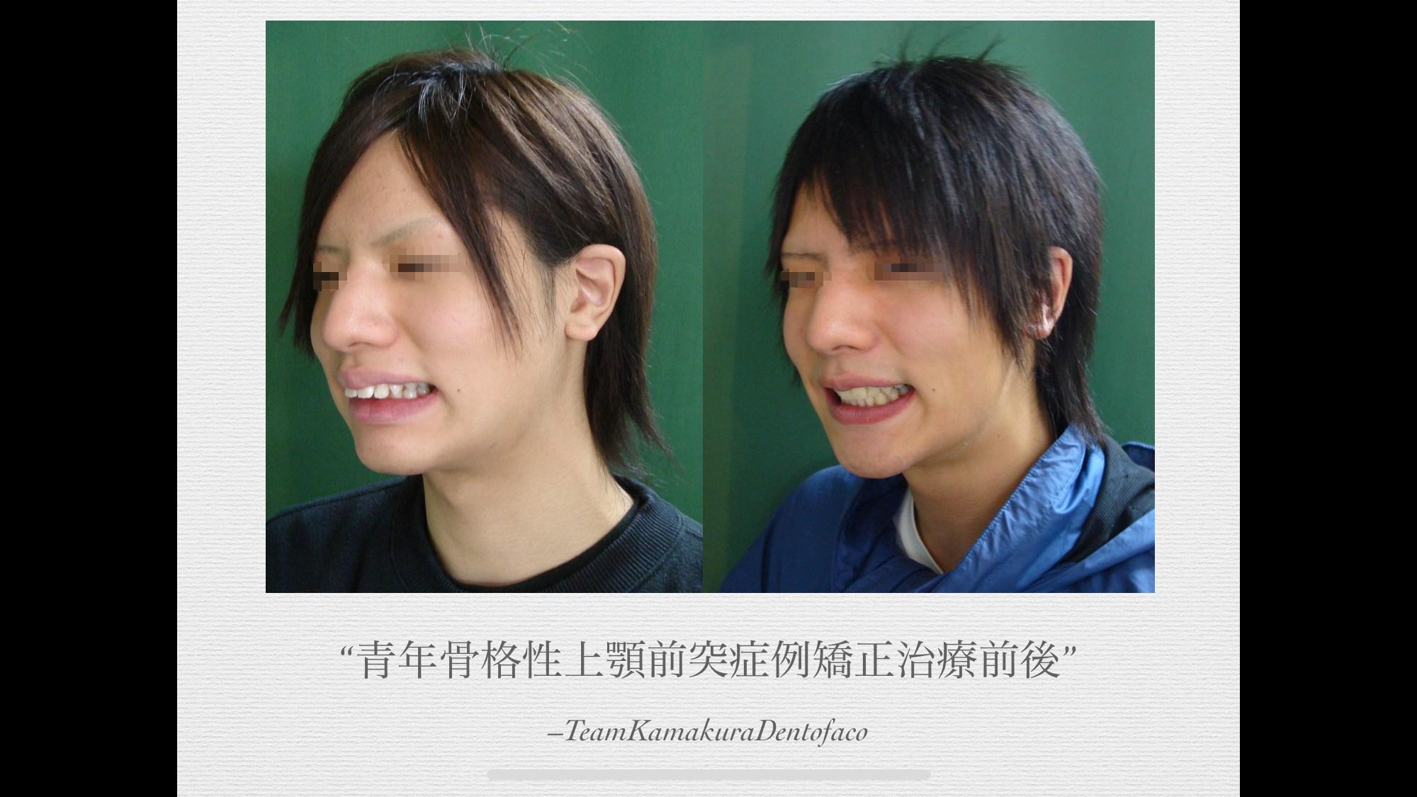 骨格性上顎前突青年症例