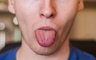 остеохондроз шейного отдела онемение языка считаю, что ошибаетесь