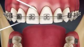Чистка зубов нитью с брекетами