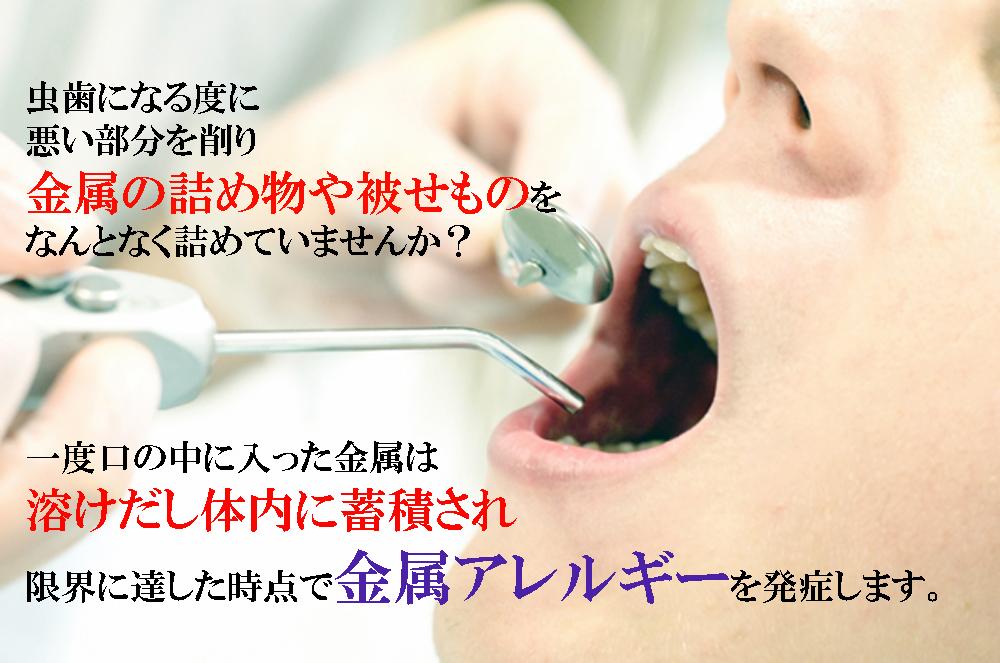 香川県の歯科金属アレルギー専門歯科ノンメタル治療なら吉本歯科医院