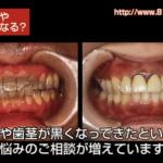 治療した歯の上の歯茎が黒づんできた理由