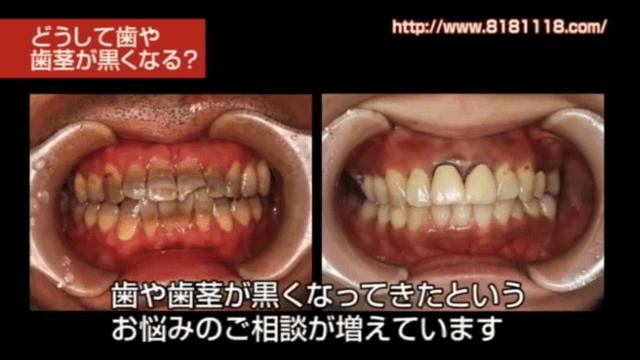 歯が黒いのを白くしたい 香川県高松市の吉本歯科医院