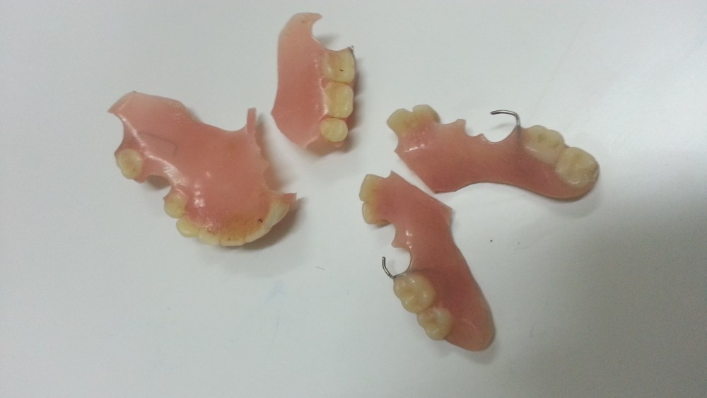 Membaiki gigi palsu / Denture repair (2/3)