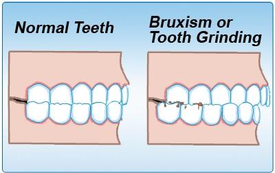 Bruxism atau Teeth Grinding (4/4)