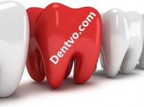 Dentvo.com  – Dentist Poland Gdansk – Dental Abroad – Save up to 70% – Highest Quality