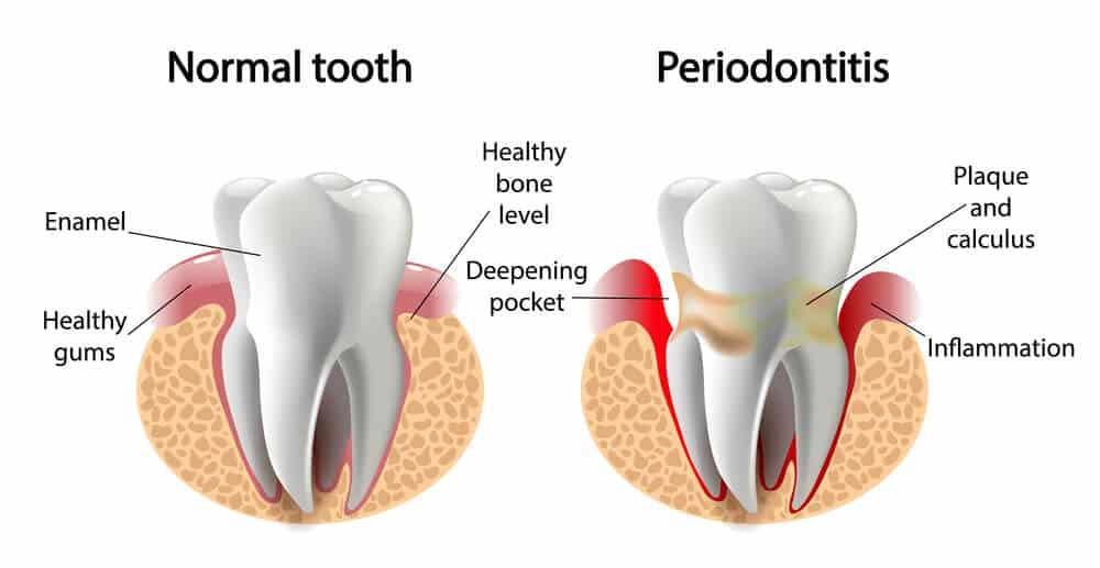 Periodontitis diagram