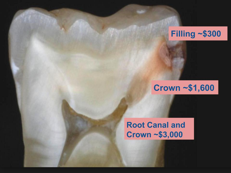Tooth-Decay-stages.jpg?fit=960%2C720&ssl=1