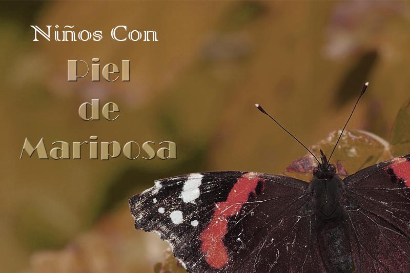 cabecera niños piel mariposa