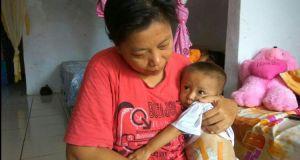 Muhammad Iqbal yang lahir tanpa anus selalu dalam gendongan ibunya. Kompas. Com
