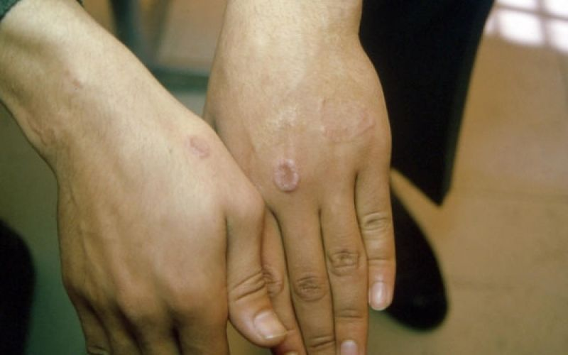 • Δακτυλιοειδές κοκκίωμα