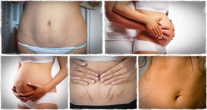 620x330xHome-remedies-for-Stretch-Marks