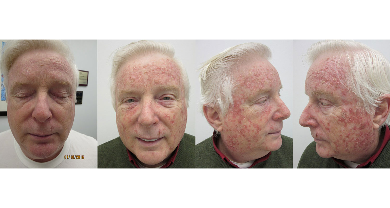 Efudex 5 Fluorouracil Forehead Treatment
