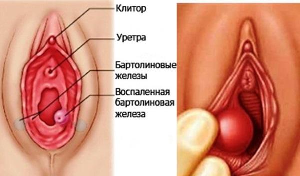 Воспаление сальных желез малых половых губ. Какую опасность таит в себе шарик на половой губе