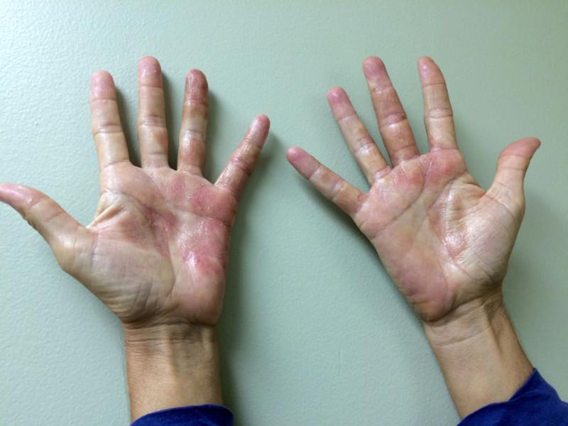 hogyan kell kezelni a tenyerek s a lbak pikkelysömörét