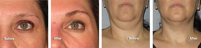 Ultherapy treatment on brow & neck