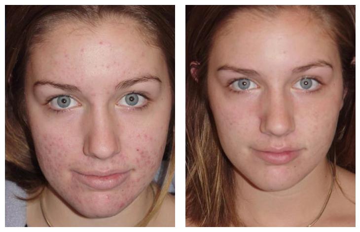 Acné antes y después