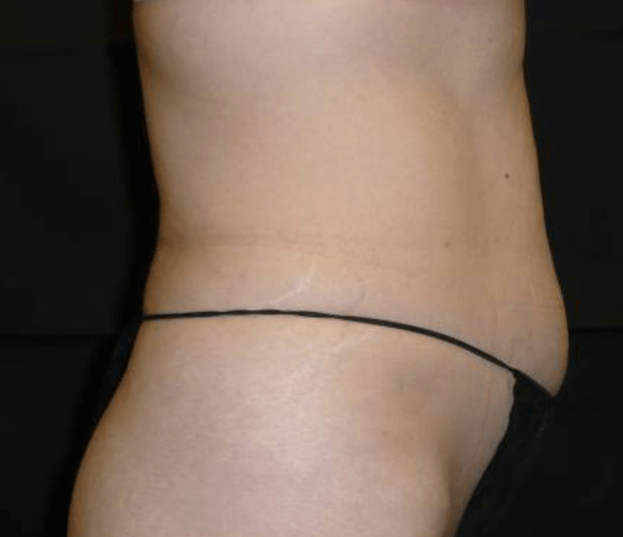 After-VelaShape III Before And After