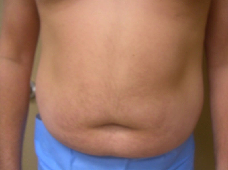 Before-VelaShape III and Liposuction