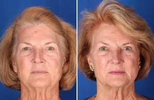 5 Tratamientos de Triniti en la cara