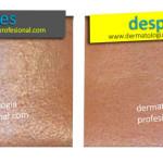 barros y espinillas puntos negros poros abiertos dermatologos df 2 150x150 Tratamiento del Envejecimiento Prematuro para Eliminar Poros Abiertos